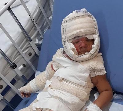 Quiteriense pede ajuda após seu filho de 2 anos sofrer queimaduras no corpo; Veja como ajudar